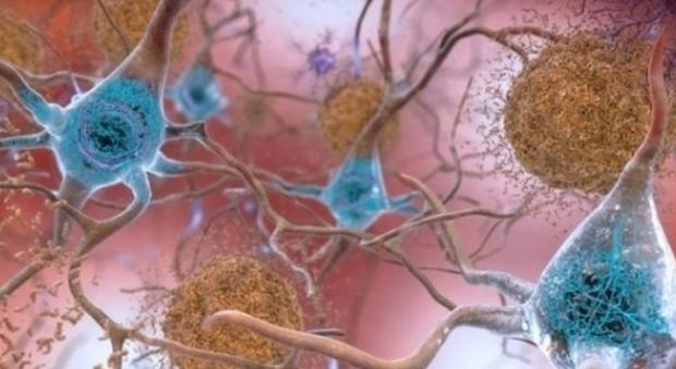 Alzheimer e demenza, vaccino vicinissimo. «Il 2020 anno della svolta, test sui topi ok»